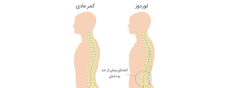 lordosis-of-spine