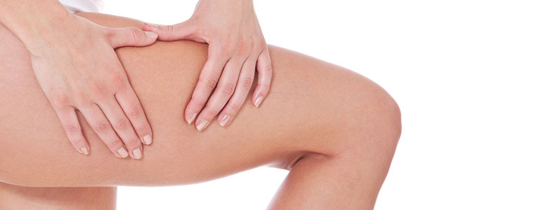 what-is-cellulite-and-cure