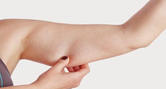 چگونه از افتادگی پوست هنگام لاغری جلوگیری کنیم